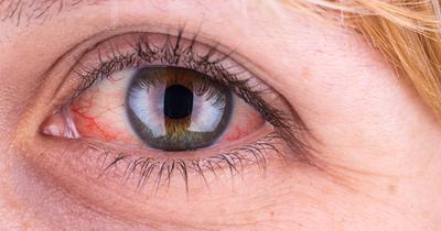Malas Membersihkan Wajah Pada Malam Hari Sebelum Tidur? Siap-siap Mengalami 6 Hal Buruk Ini