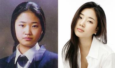 Sebelum dan Sesudah Operasi Plastik, Hasil Wajah 4 Artis Korea Ini Bikin Terkejut!