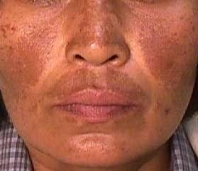 #FORUM Setelah pakai hydroquinone kulit justru menggelap? Stop pemakaian atau tetap teruskan?