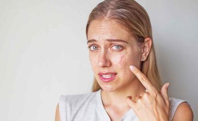 #FORUM Cara mengatasi jerawat di wajah yang merah dan meradang gimana?