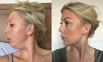 Dari Make Up Hingga Gaya Rambut, Ikuti Trik Ini Agar Double Chin Hilang dan Wajah Lebih Tirus
