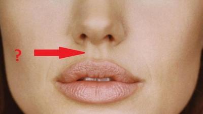 #FORUM Apa Penyebab Jerawat Bawah Hidung?