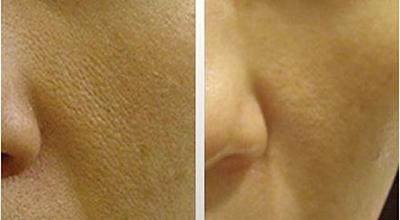 https://www.dermarollerstore.co.uk/wp-content/uploads/2016/02/derma-roller-before-and-after-large-pores.jpg