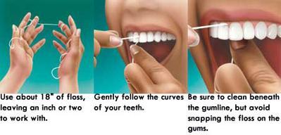2. Flossing
