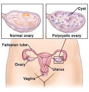 6. Sindrom Polikistik Ovarium