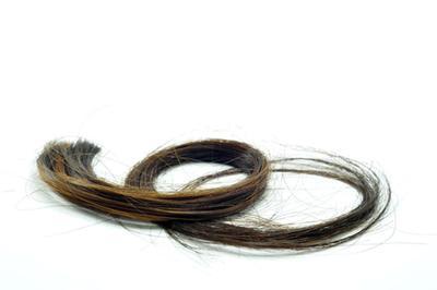 Beberapa Hal yang Perlu Diketahui Tentang Rambut Rontok