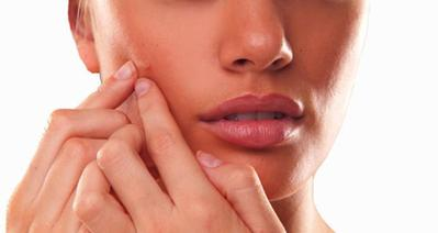 Tips Menghilangkan Jerawat dari Pakar Kecantikan