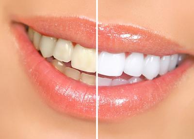 Memutihkan Gigi Dengan Bahan Alami