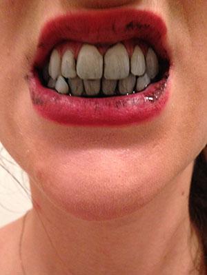Memutihkan Gigi Dengan Bahan Alami Life Beautynesia