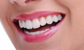 Bahan-Bahan Makanan yang Dapat Membuat Gigi Putih Alami