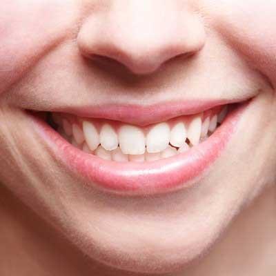 Tips Saat Melakukan Cabut Gigi Geraham  685ccecb26