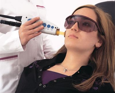 Apakah Treatment Laser Jerawat Bertahan Lama?