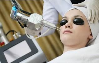 Kenali Lebih Jauh Tentang Laser Jerawat