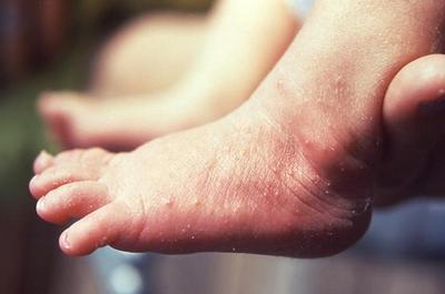 Obat Biang Keringat dari Bahan Alami yang Aman untuk Tubuh Si Kecil