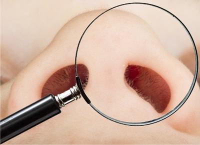 Cara menghilangkan bulu hidung dengan mencabut menjadi cara yang dilakukan  banyak orang. Mencabut bulu hidung memang dirasa paling mudah dan tidak  repot. a1c888ed0e