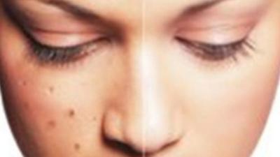 Inilah 5 Penyebab Flek Hitam Pada Wajah dan Kulit Tubuh