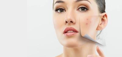 Tips Makeup Sehari-hari untuk Wajah Berjerawat