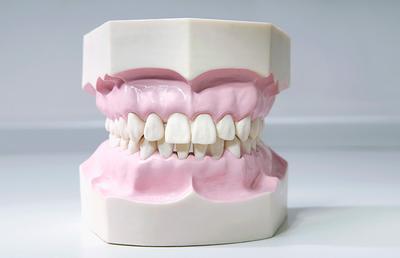 Gangguan Pada Rongga Mulut