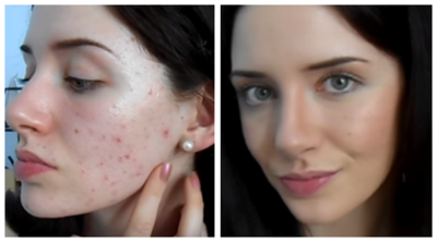 Makeup untuk Tutupi Masalah Jerawat