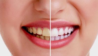 8 Bahan Alami yang Bermanfaat untuk Memutihkan Gigi