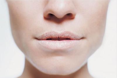 Bibir Berwarna Putih Pucat
