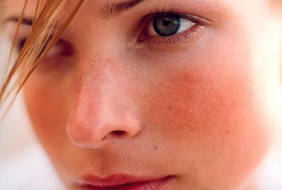 4 Face Skin Problem yang Perlu Anda Ketahui