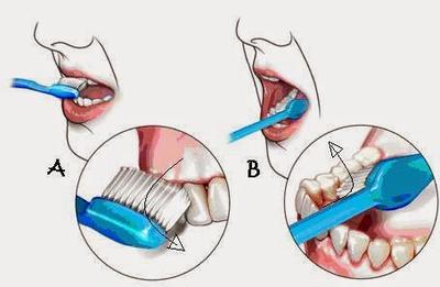 2. Menggosok Gigi Secara Teratur dan Gunakan Mouthwash