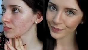 Kosmetik yang Perlu Dihindari untuk Wajah Berjerawat