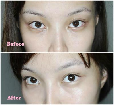 Shiseido Shiseido Anti Dark Circles Eye Cream Ingredients