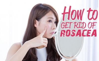 Perawatan Alami untuk Mengatasi Bintik Kemerahan Pada Wajah (Rosacea)