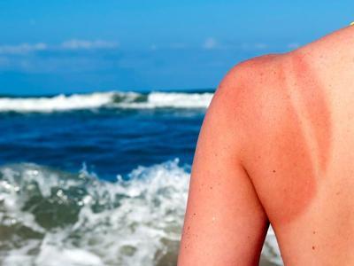 Kulit Belang Karena Sinar Matahari? Coba Atasi dengan 4 Cara Mudah Ini!