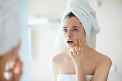 Penting! Ini Alasan Mengapa Kamu Harus Tes Skin Care Terlebih Dahulu dan Cara Tepat Melakukannya