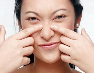 Tips Ini Bisa Membantu Kamu Menghilangkan Komedo Pada Hidung Secara Efektif Lho!