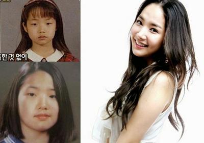 Mengejutkan, Ini Bedanya Wajah Artis Korea Sebelum dan Sesudah Operasi!