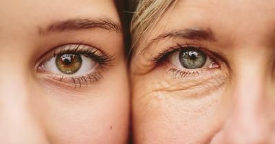 Tidak Ingin Mengalami Penuaan Dini? Yuk Terapkan 3 Kebiasaan Ini Mulai Sekarang!