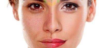 Efektif! Ini Dia 6 Tips Jitu Samarkan Flek Hitam Pada Wajah!