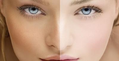 Melakukan Pemutihan Kulit, Ini 5 Cara yang Benar Melakukan Bleaching yang Harus Kamu Tahu