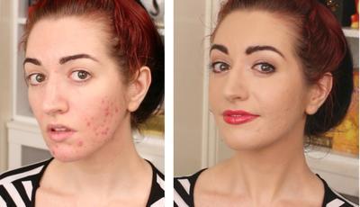 Tampak Mulus Natural, Begini 5 Cara Tepat Menutupi Jerawat dengan Make Up!