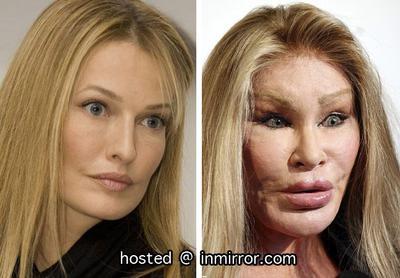 Duh, Begini Penampilan Sekarang Para Wanita yang Dulu Gagal Melakukan Operasi Plastik!