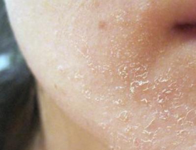 Pengelupasan kulit