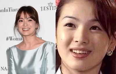 Gak Nyangka! Ternyata Selebriti Korea Ini Dulunya Punya Gigi yang Gak Rapi Lho!