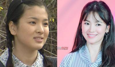 Wow, Gak Nyangka! Deretan Selebriti Korea Ini Ternyata Punya Pipi Tembem Lho!