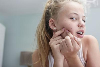 #FORUM Kenapa Remaja Gampang Banget Jerawatan Ya?