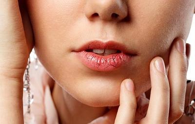 #FORUM Ada yang Tau Cara Menghilangkan Bibir Pecah-Pecah?