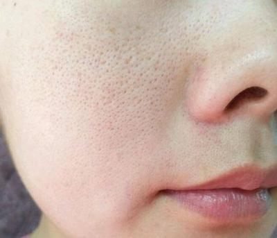 #FORUM Rekomendasi Skincare Korea yang Bisa Mengecilkan Pori-pori