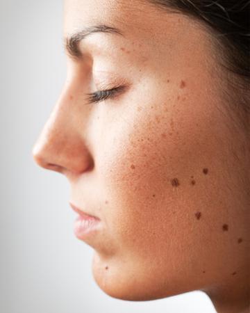 Tahi Lalat Bisa Berbahaya, Ini Tips untuk Mengetahui Ciri-cirinya!