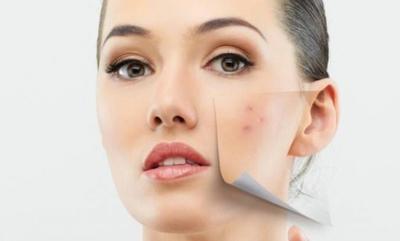 #FORUM Rekomendasi Masker Wajah Untuk Menyamarkan Noda Hitam Bekas Jerawat
