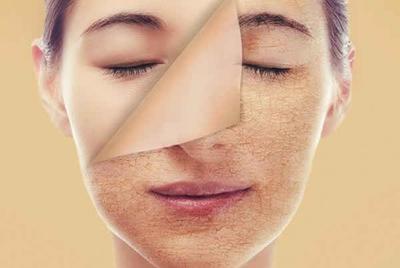 #FORUM Kak, Rekomendasi Skincare untuk Menghindari Kulit Wajah Kering Saat Puasa