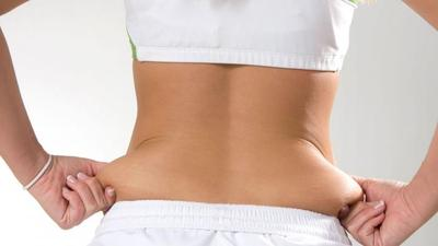 Resiko Obesitas