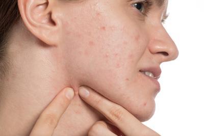 [FORUM] Problem Jerawat! 5 Tahun Berjuang Melawan Jerawat di Wajah